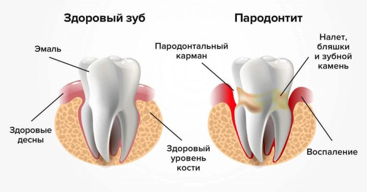The development of periodontitis on a healthy tooth