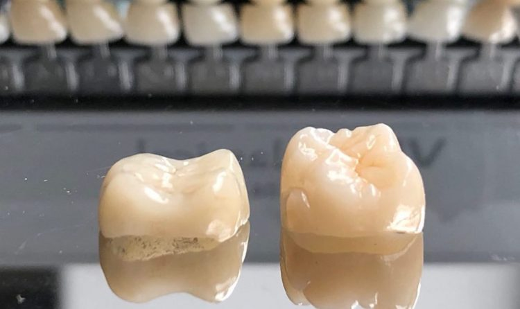 Metalless crowns on the posterior teeth